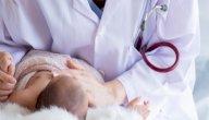 أسباب نزول دم من سرة المولود