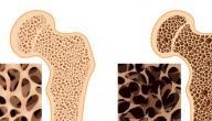 ما هي أعراض هشاشة العظام عند النساء