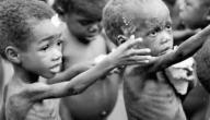 الامراض الناتجة عن سوء التغذية والوقاية منها
