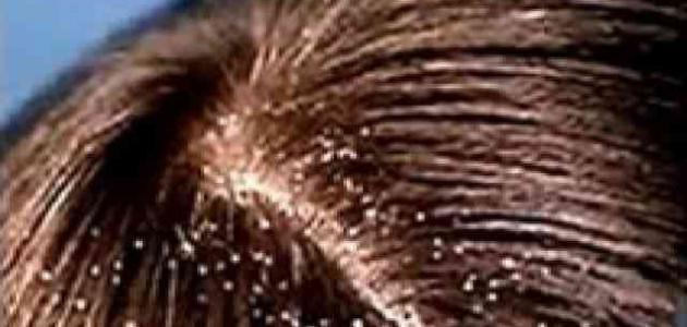 طريقة للتخلص من قشرة الشعر حياتك
