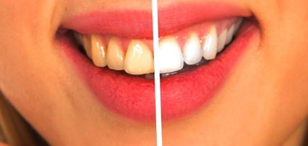 طريقة تبيض الاسنان بسرعه