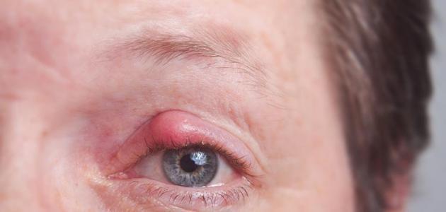 علاج التهاب جفن العين بالاعشاب