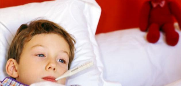 أسباب سخونة الرأس عند الأطفال