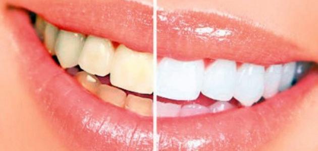 اسباب اصفرار الاسنان عند الصغار