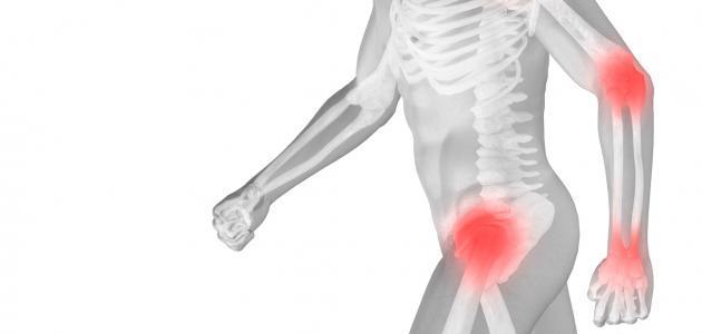 ما علاج هشاشة العظام