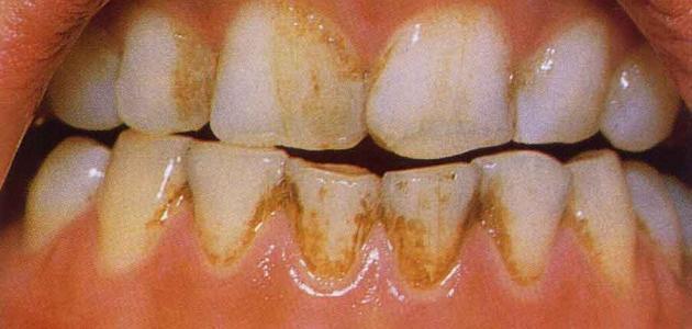 علاج تصبغات الاسنان