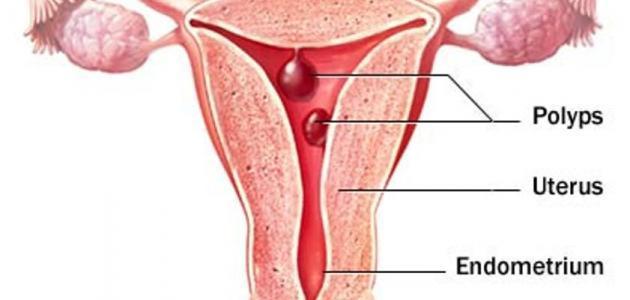 علاج نزيف الرحم المستمر حياتك