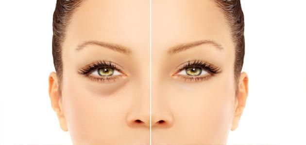 علاج انتفاخ العين والسواد