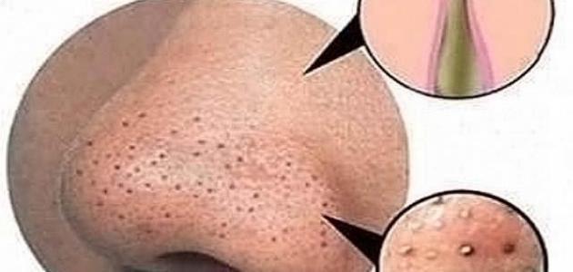 أسباب ظهور بقع سوداء في الوجه