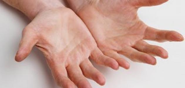 أسباب تشقق أصابع اليدين حياتك
