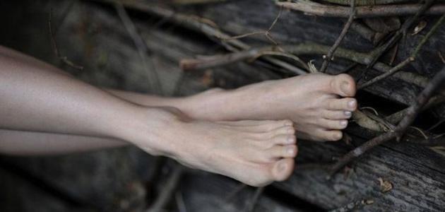 5 مشاكل في قدمكِ قد تدلل على المرض