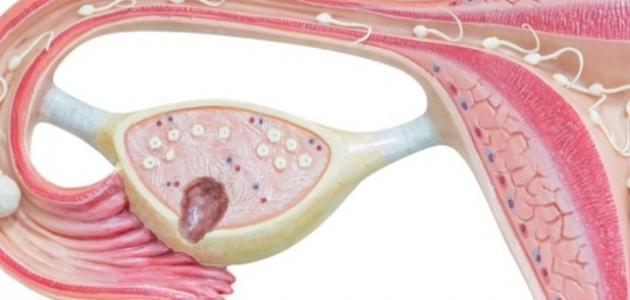 أسباب أكياس الرحم
