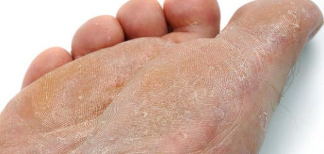 الفطريات الجلدية وعلاجها بالاعشاب