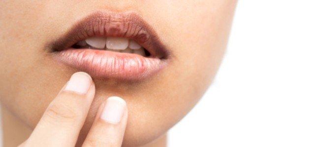 ما هي أسباب جفاف الفم؟ ومتى يصبح خطرًا على صحتكِ؟