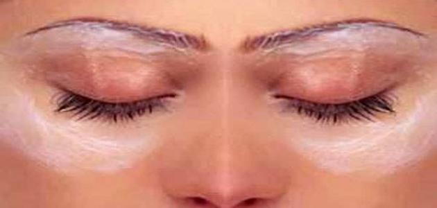 اسباب سواد حول العين حياتك
