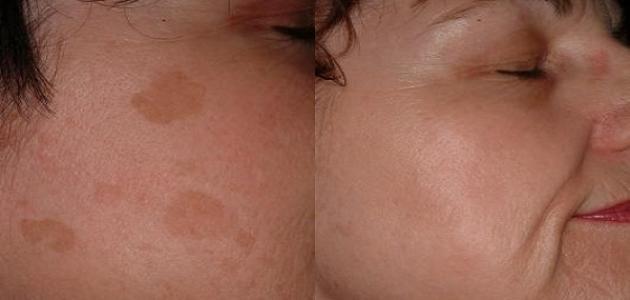 افضل كريم لازالة البقع البنية في الوجه حياتك