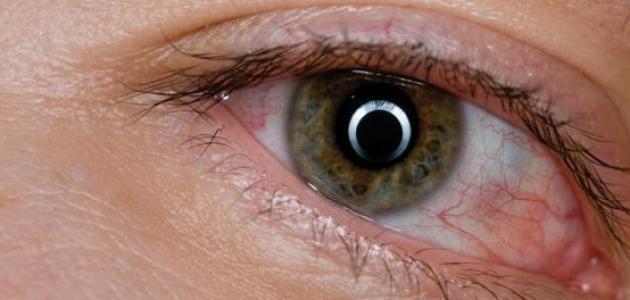 علاج انتفاخ العين عند الأطفال حياتك
