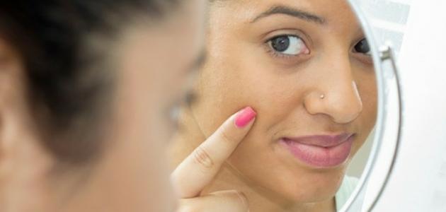 أسباب التصبغات في الوجه