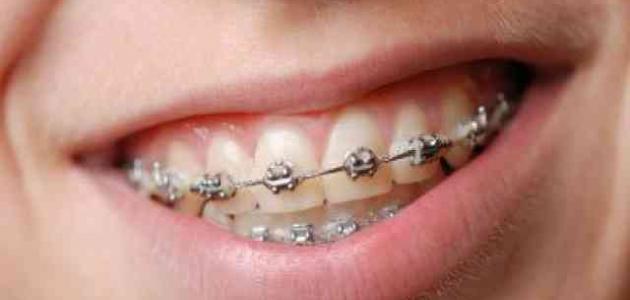 اشكال الاسنان قبل وبعد التقويم