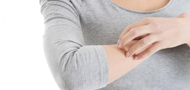 اعراض حساسية الجلد وعلاجها