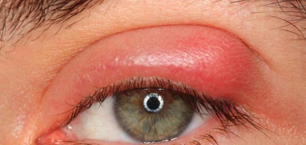 علاج انتفاخ العين والجفن
