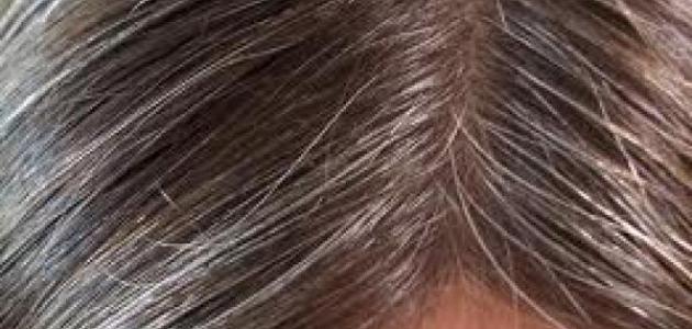 ظهور الشعر الابيض مبكرا