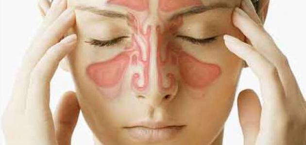الفرق بين حساسية الأنف والتهاب الجيوب الأنفية